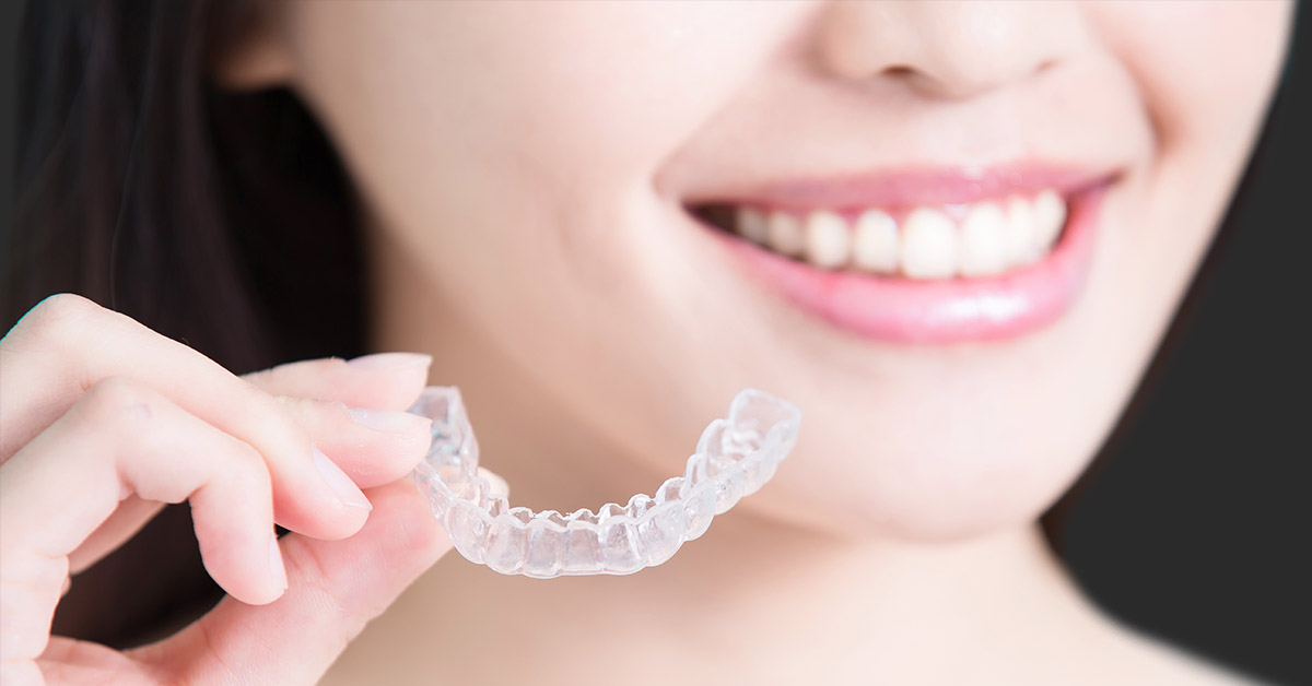 invisalign dental treatment bury